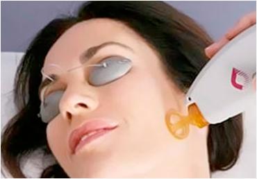 Cuidados que requiere la depilación láser