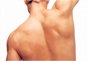 Depilación Láser Espalda Superior Hombre