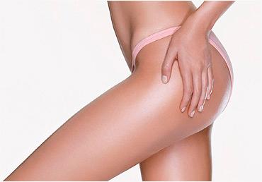 Depilación Láser Muslos Mujer