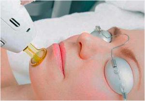 La depilación láser y el período menstrual.