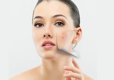 Antes de realizarse un tratamiento láser, debes suspender tu tratamiento contra el acné.