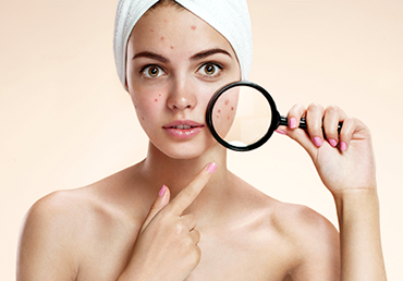 El acné y la depilación láser no son compatibles.
