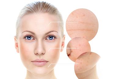 La depilación láser un buen aliado contra las manchas a la piel.