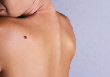 Cuándo la depilación láser es incompatible