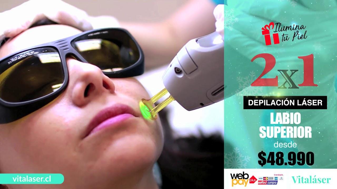Tratamiento de Depilación Láser Alexandrita Labio Superior