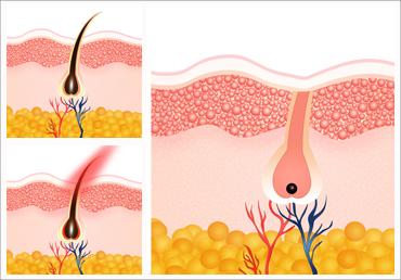 Descubre cómo se comporta el vello tras una sesión de depilación láser