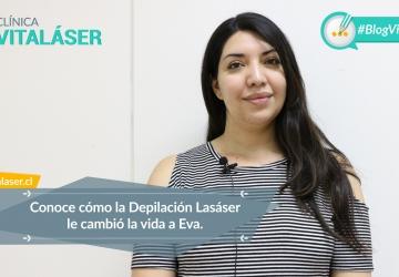 """Testimonio Depilación Láser: """"Vitaláser marca la diferencia en lo referente a Depilación Láser en Santiago"""""""