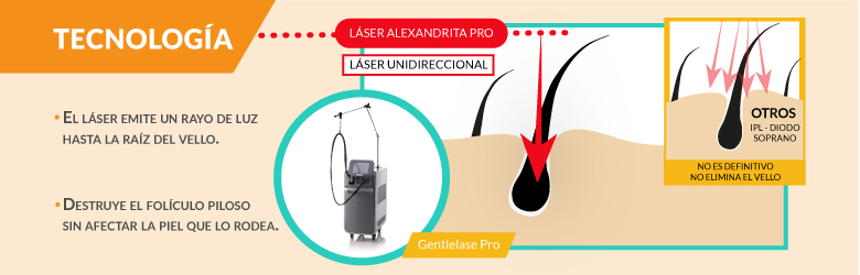 Tecnología de los tratamientos laser en depilacion laser alexandrita