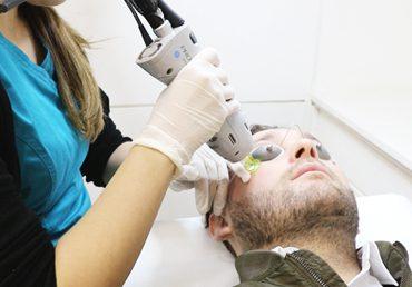 depilacion laser beneficios